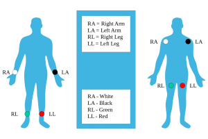 4 lead ecg placement