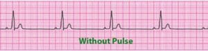 pulseless electrical activity ecg